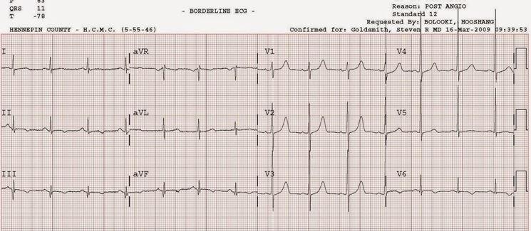 ECG paziente ischemico