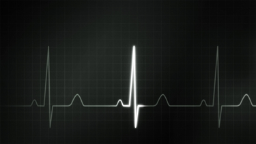 ECG su monitor