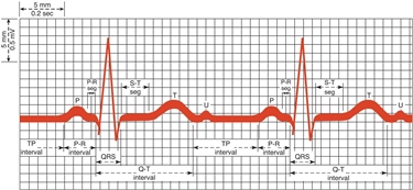 ECG normale su carta millimetrata