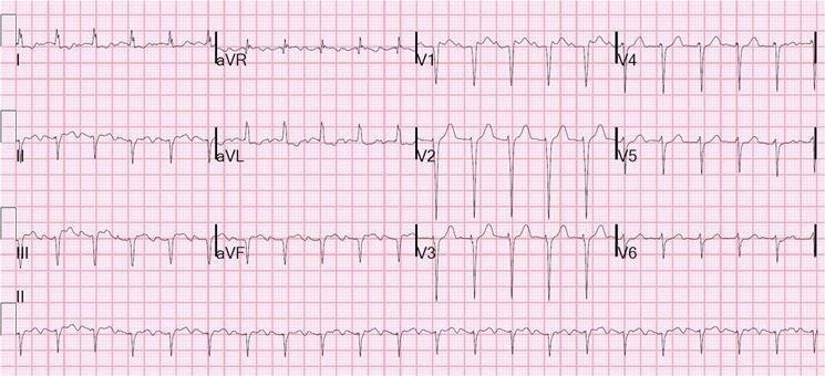 Grafico tachicardia