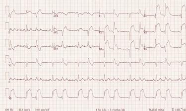 Tracciato elettrocardiografico di infartuato<p />