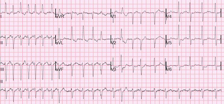 Esempio di ecg cardiaco