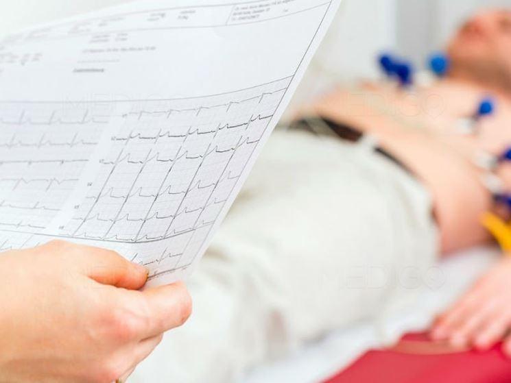 leggere un elettrocardiogramma