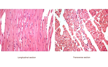 Cellule muscolari del miocardio