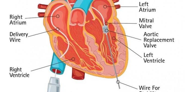 Descrizione parti del cuore