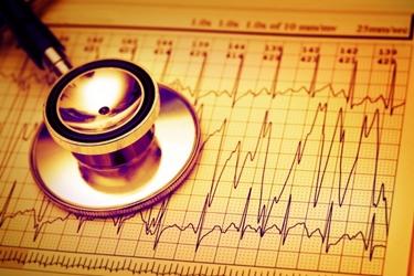 Battito irregolare e tachicardia