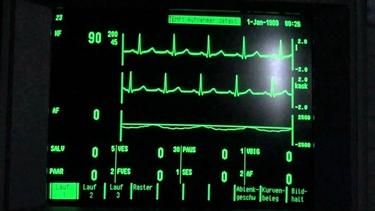 Tachicardia parossistica ventricolare