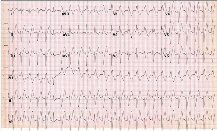 Esempio di tachicardia ventricolare