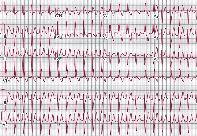 Battito cardiaco irregolare