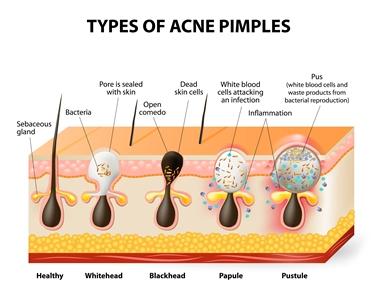 Tipi di foruncoli dell'acne