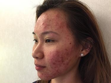 Estesa acne sul viso