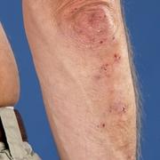 Lieve dermatite erpetiforme