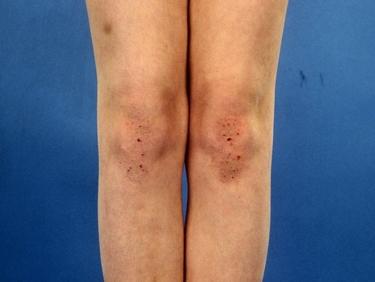 Dermatite sulle ginocchia
