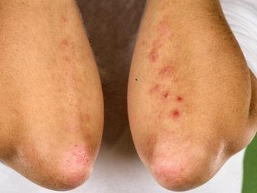 Dermatite sui gomiti