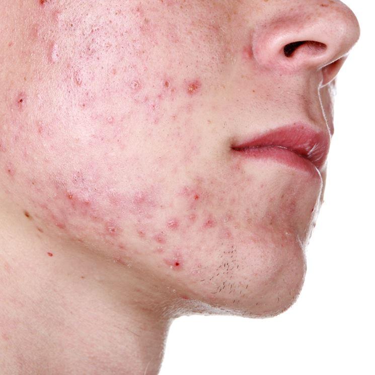Volto colpito da acne