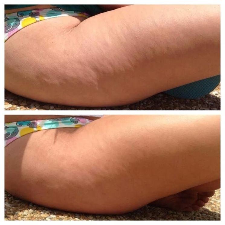 Cellulite prima e dopo il trattamento