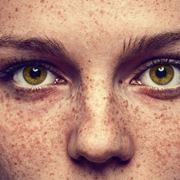 Una ragazza con le lentiggini