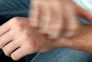 prurito per dermatite