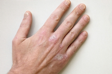 La ragione di eczema sui gomiti