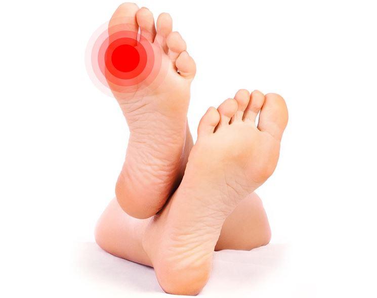Piedi affetti da metatarsalgia