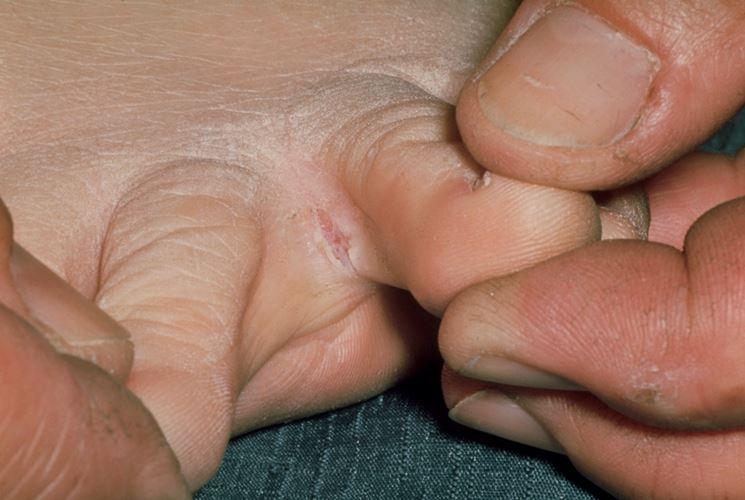 Lesione da piede d'atleta