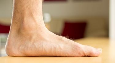 Il tipico piede piatto
