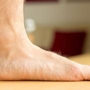 Caratteristico piede piatto