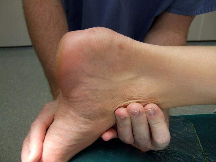 Deformazione da sindrome di Haglund