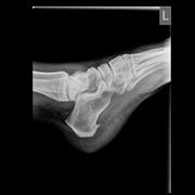 Radiografia di spina calcaneare