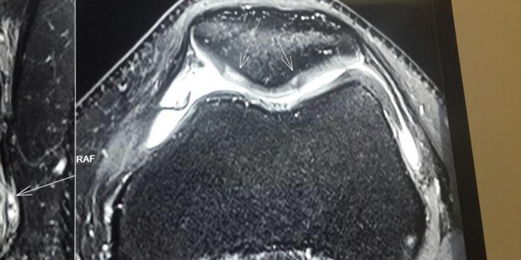 Perdita cartilagine