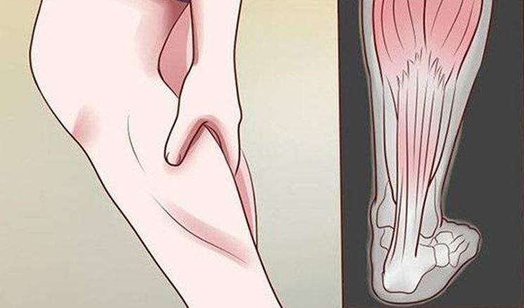 Infiammazione muscolare gambe sintomi, resta...
