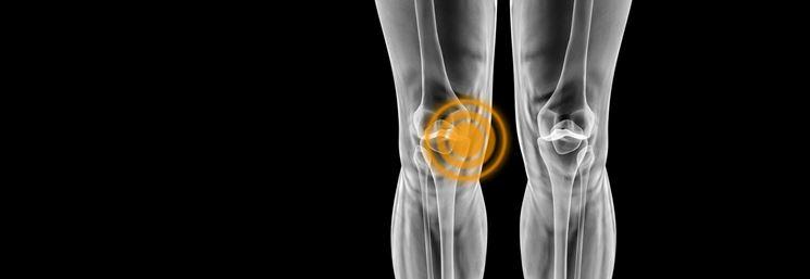 Localizzazione infiammazione ginocchio