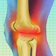 Infiammazione zampa d'oca ginocchio