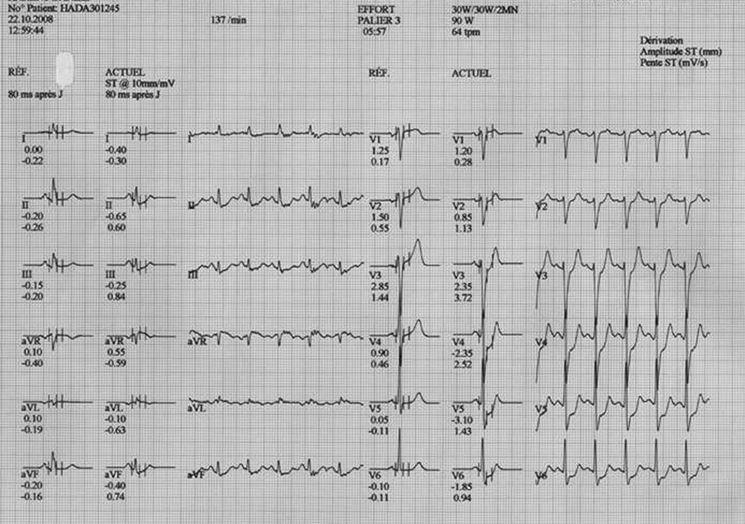 Esempio grafico ECG
