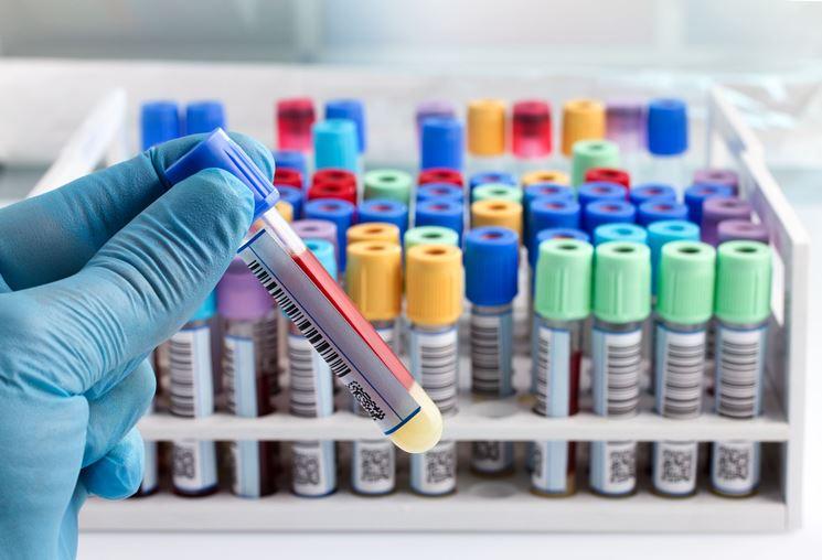 Campioni di sangue pronti per il dosaggio