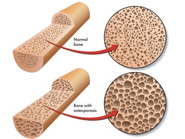 Confronto tra osso sano e afflitto da osteoporosi