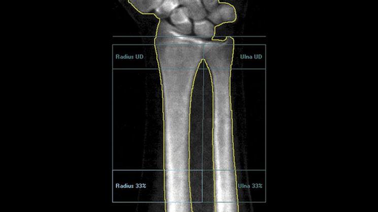 Misurazioni osse