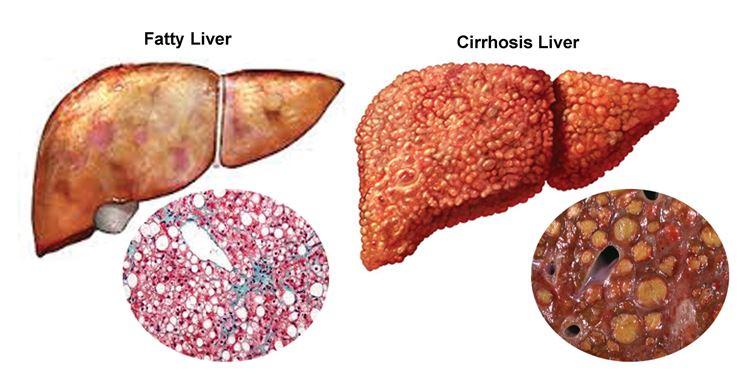 Aspetto fegato malato