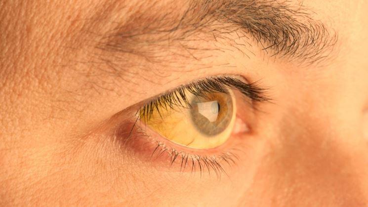 Occhi bilirubina