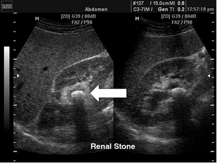 Immagine dei reni con ultrasuoni
