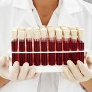 Provette per esami del sangue