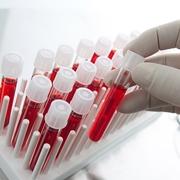 Provette per esame PCR