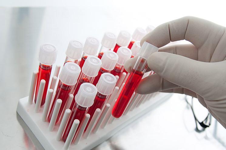 L'mcv basso si rileva con le analisi del sangue