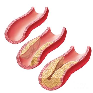 placca aterosclerotica in accrescimento