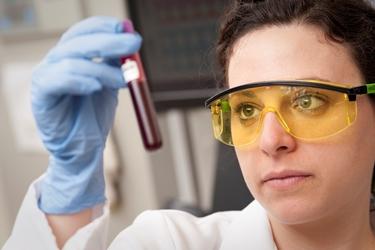 Campione di sangue per l'analisi