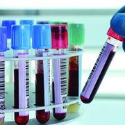 Esami del sangue per controllare le transaminasi