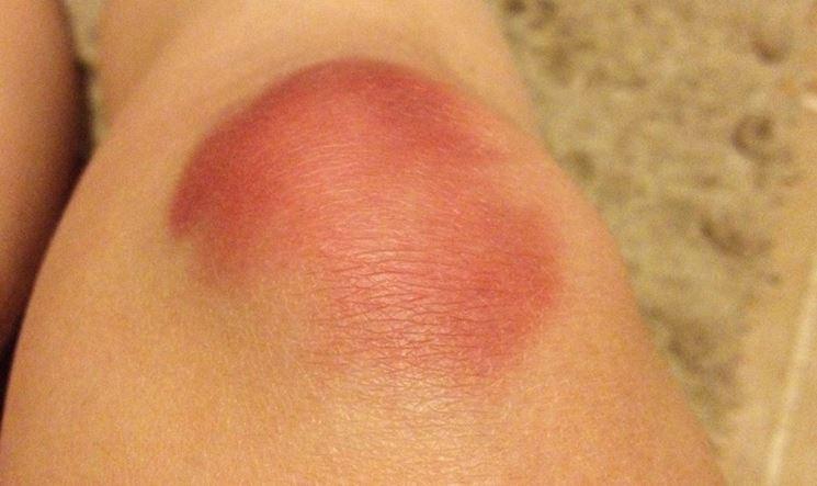 Contusione con ematoma al ginocchio