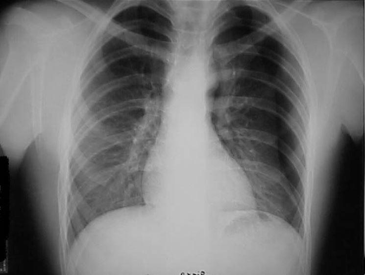 Radiografia di una contusione polmonare