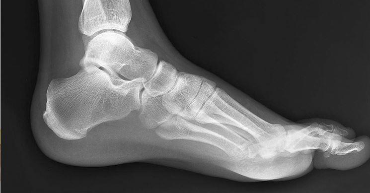 frattura da stress del piede