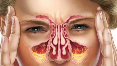 Infiammazione dei seni nasali